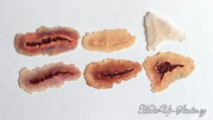 picture of wound set collecion